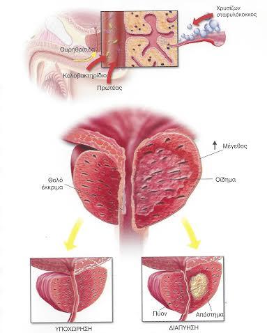 Οξεία βακτηριακή προστατίτιδα: φλεγμονή και οίδημα του προστάτη.
