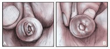 Έφηβος γυμνό συλλογή